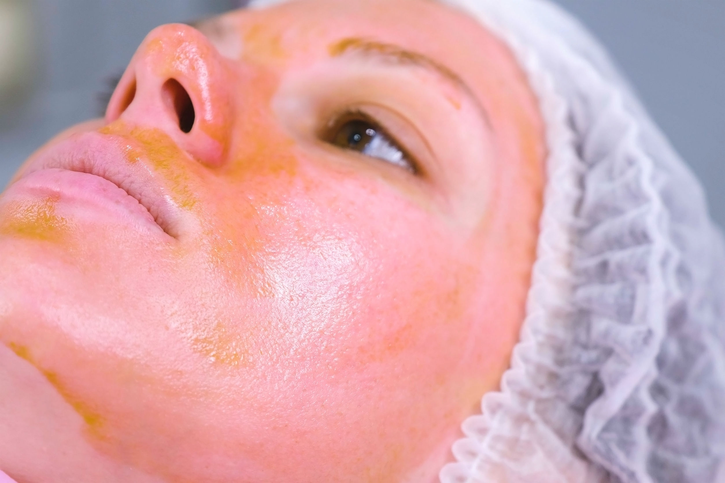 Chemical peeling o the woman's face. Cleaning the face skin and lightening freckles skin. Close-up face. Side view.